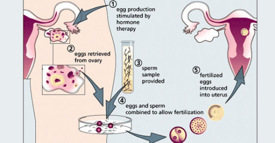 Stages of IVF procedure
