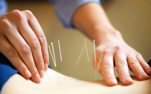 Acupuncture may not be effective in treating infertility