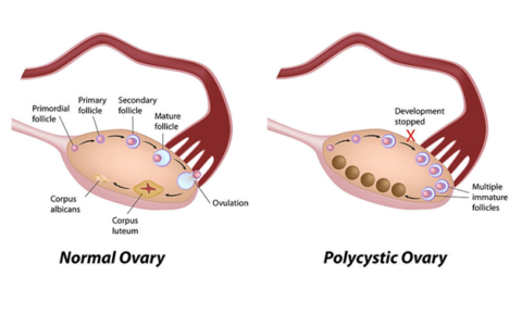 Study finds new class of androgens play key role in polycystic ovary syndrome