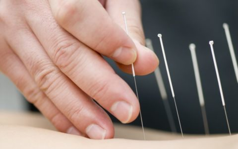 Fertility study finds acupuncture ineffective for IVF birth rates
